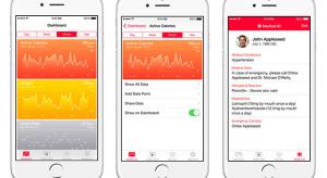 Vércukorszint mérés lesz a jövőbeli Apple Watch újdonsága