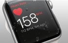 Így mentett meg egy újabb életet az Apple Watch, amelyre még a klinika eszközök sem voltak képesek