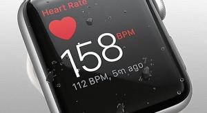Tovább fejleszti az Apple Watch egészségi funkcióit az Apple