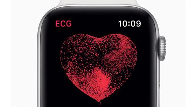 Orvosok szerint 65 év alatti felhasználóknak teljesen felesleges használniuk az Apple Watch EKG funkcióját