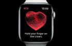 Alacsony pulzus miatt is életmentő lehet az Apple Watch