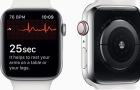 Megérkezett a watchOS 5.1.2 és vele együtt az EKG app