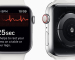 Máris életet mentett az Apple Watch EKG funkciója